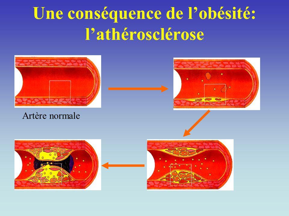 Une conséquence de l'obésité: l'athérosclérose