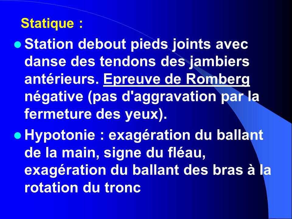 Statique :