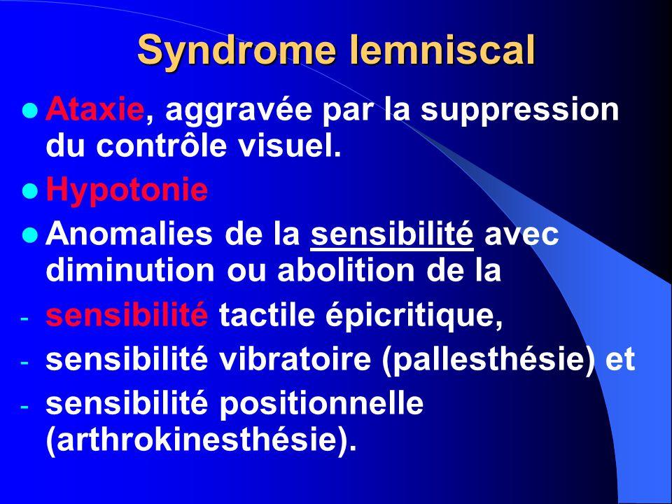 Syndrome lemniscal Ataxie, aggravée par la suppression du contrôle visuel. Hypotonie.