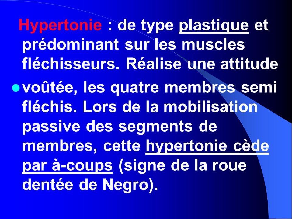 Hypertonie : de type plastique et prédominant sur les muscles fléchisseurs. Réalise une attitude