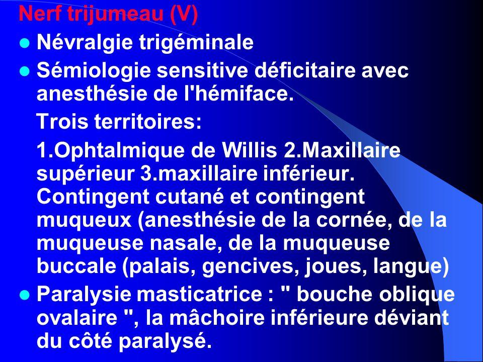 Nerf trijumeau (V) Névralgie trigéminale. Sémiologie sensitive déficitaire avec anesthésie de l hémiface.