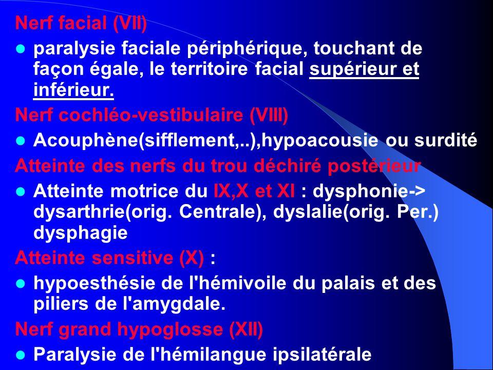 Nerf facial (VII) paralysie faciale périphérique, touchant de façon égale, le territoire facial supérieur et inférieur.