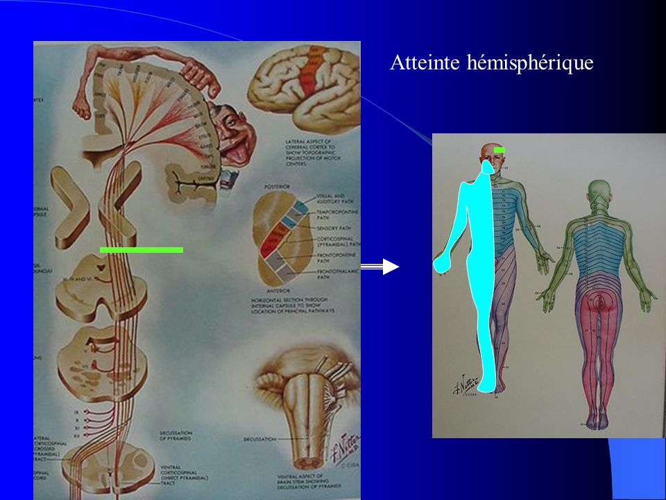 Atteinte hémisphérique
