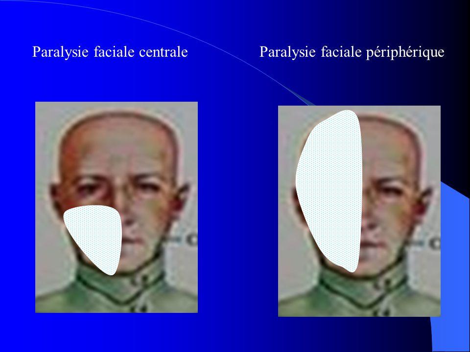 Paralysie faciale centrale