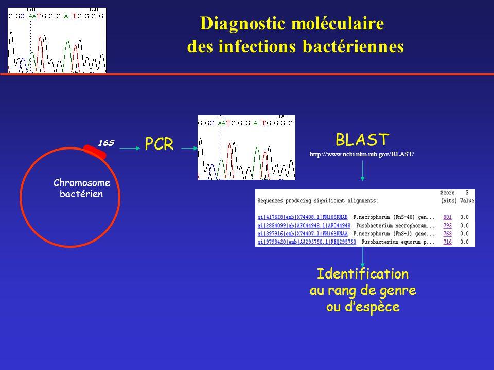 Diagnostic moléculaire des infections bactériennes