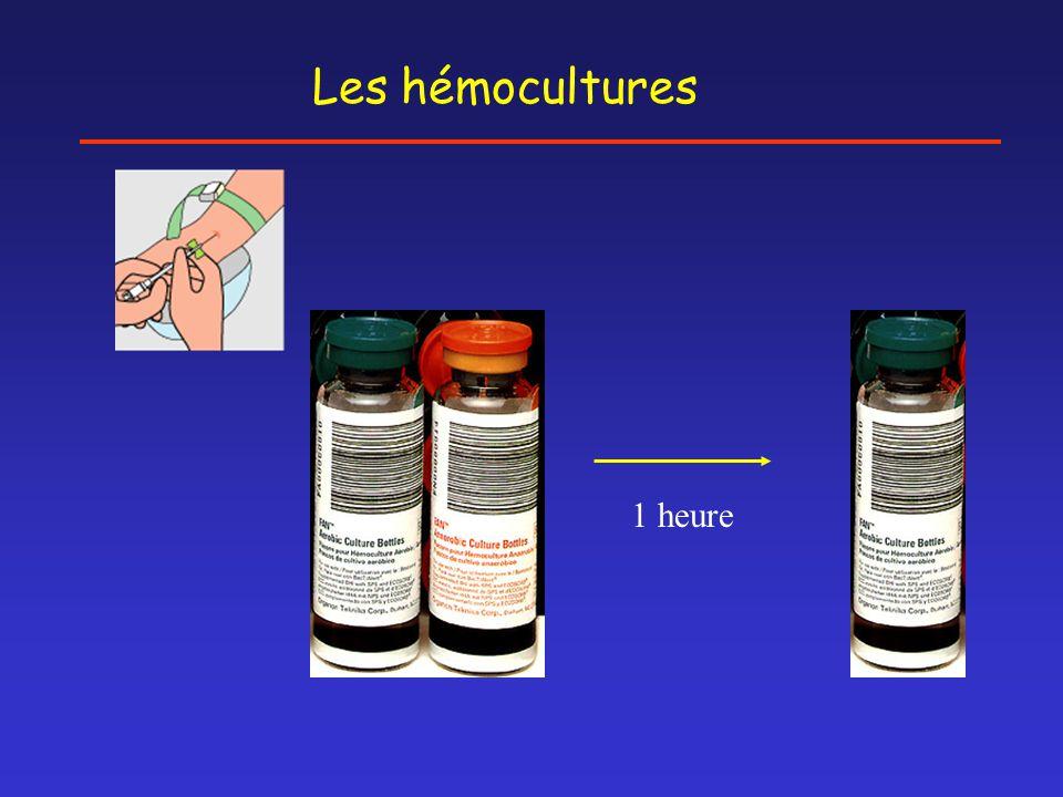 Les hémocultures 1 heure
