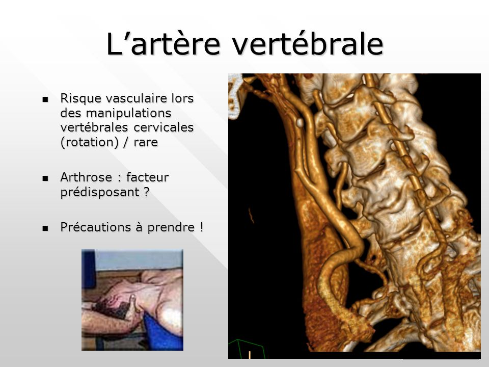 L'artère vertébrale Risque vasculaire lors des manipulations vertébrales cervicales (rotation) / rare.