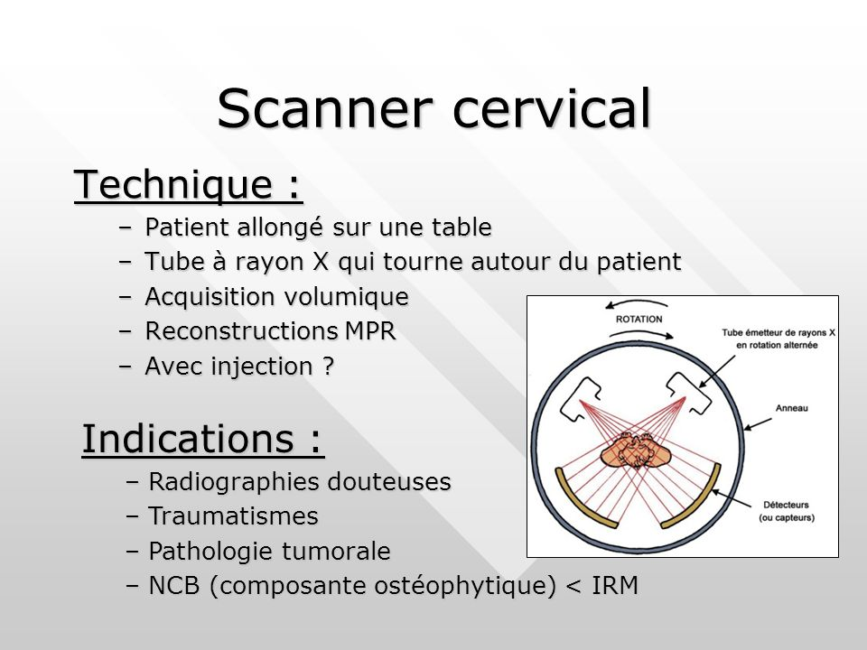 Scanner cervical Technique : Indications :