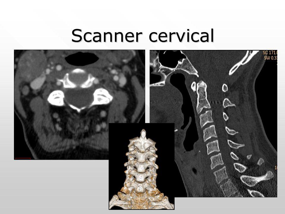 Scanner cervical
