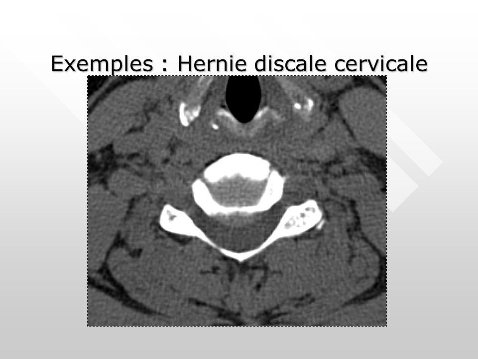 Exemples : Hernie discale cervicale