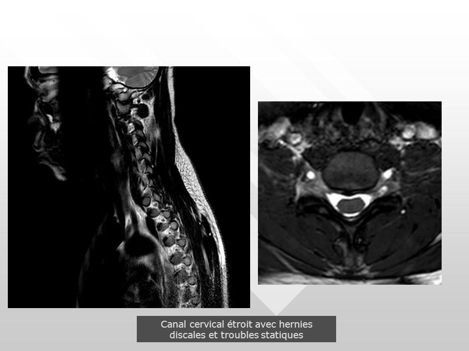 Canal cervical étroit avec hernies discales et troubles statiques