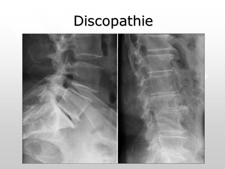Discopathie