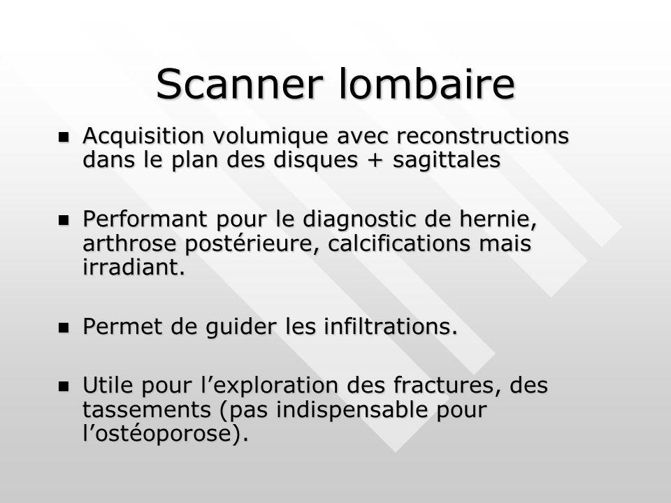 Scanner lombaire Acquisition volumique avec reconstructions dans le plan des disques + sagittales.