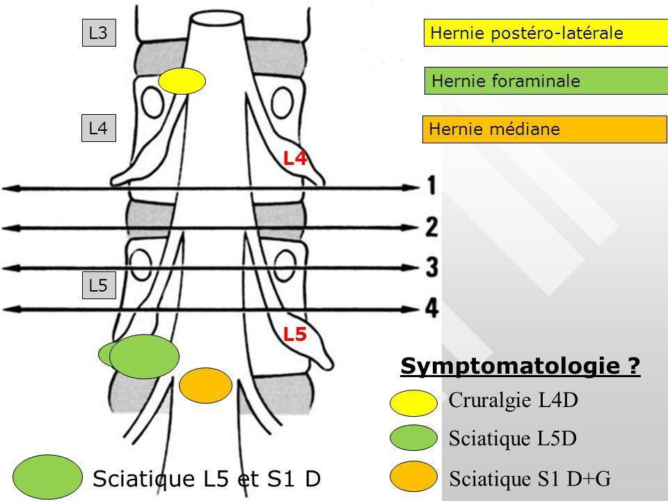 Symptomatologie Cruralgie L4D Sciatique L5D Sciatique L5 et S1 D