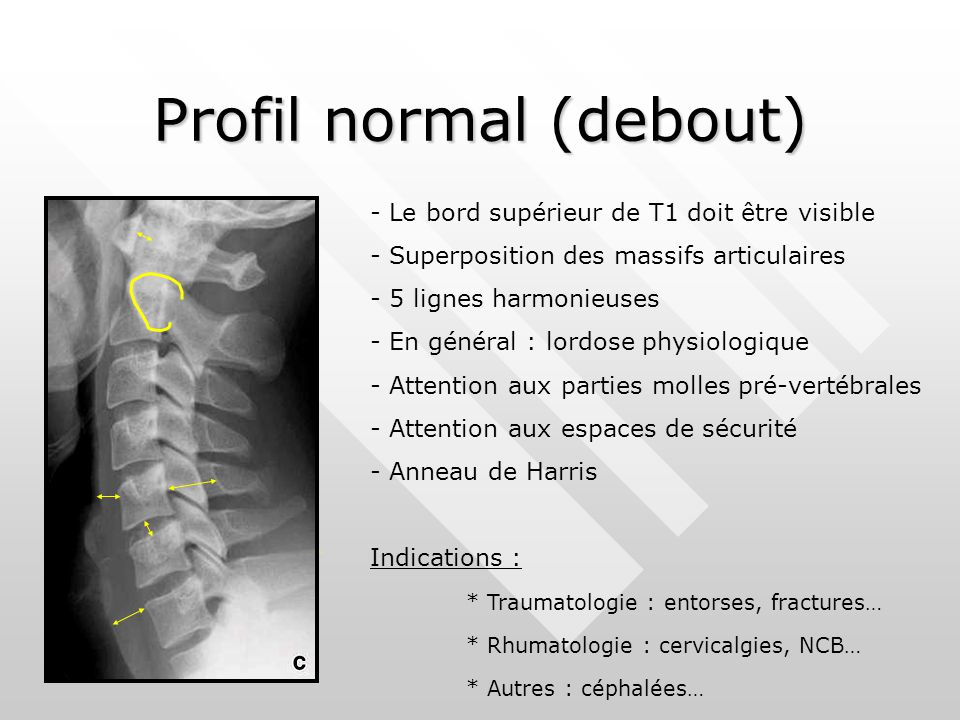 Profil normal (debout)