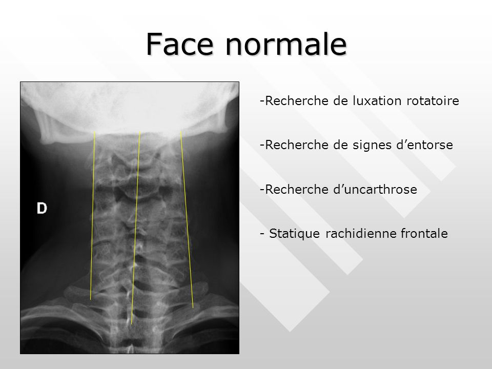 Face normale Recherche de luxation rotatoire