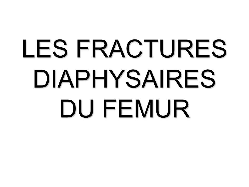 LES FRACTURES DIAPHYSAIRES DU FEMUR