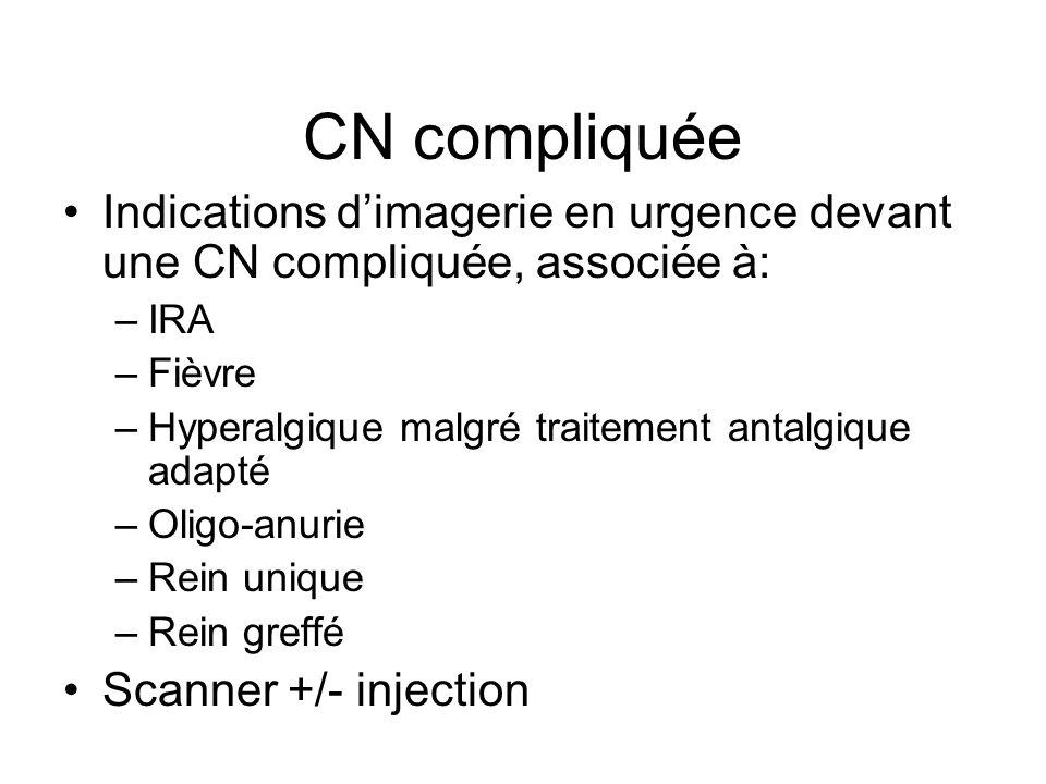 CN compliquée Indications d'imagerie en urgence devant une CN compliquée, associée à: IRA. Fièvre.