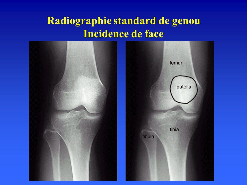 Radiographie standard de genou Incidence de face