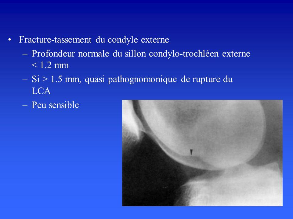 Fracture-tassement du condyle externe