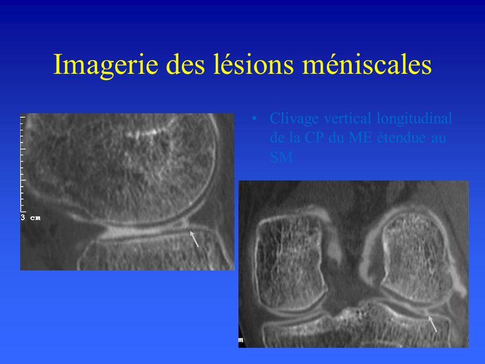 Imagerie des lésions méniscales