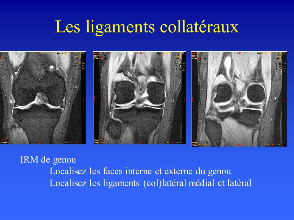 Les ligaments collatéraux