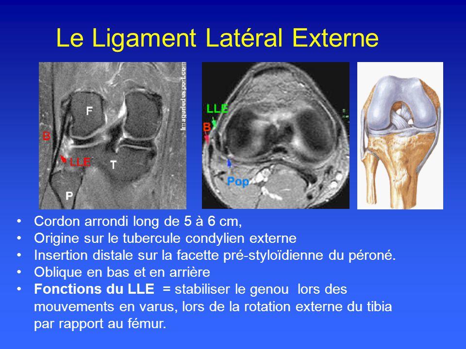 Le Ligament Latéral Externe