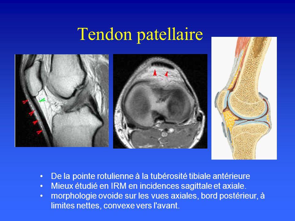 Tendon patellaire De la pointe rotulienne à la tubérosité tibiale antérieure. Mieux étudié en IRM en incidences sagittale et axiale.