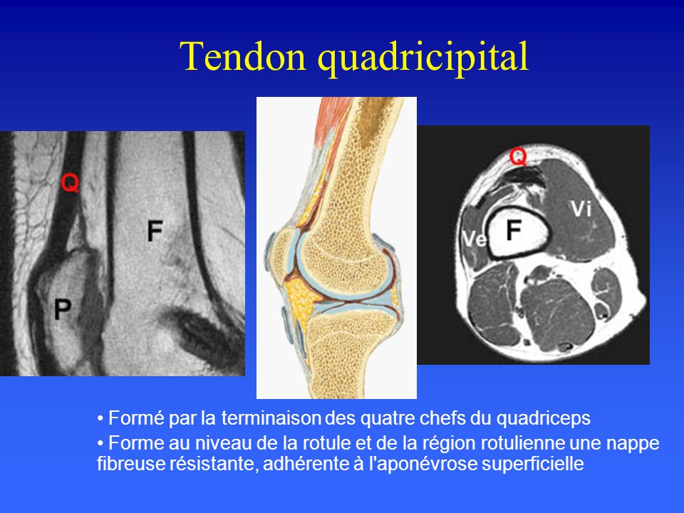 Tendon quadricipital Formé par la terminaison des quatre chefs du quadriceps.
