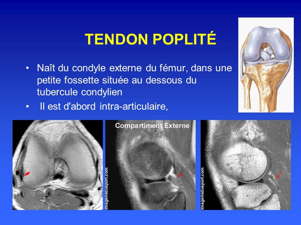 TENDON POPLITÉ Naît du condyle externe du fémur, dans une petite fossette située au dessous du tubercule condylien.