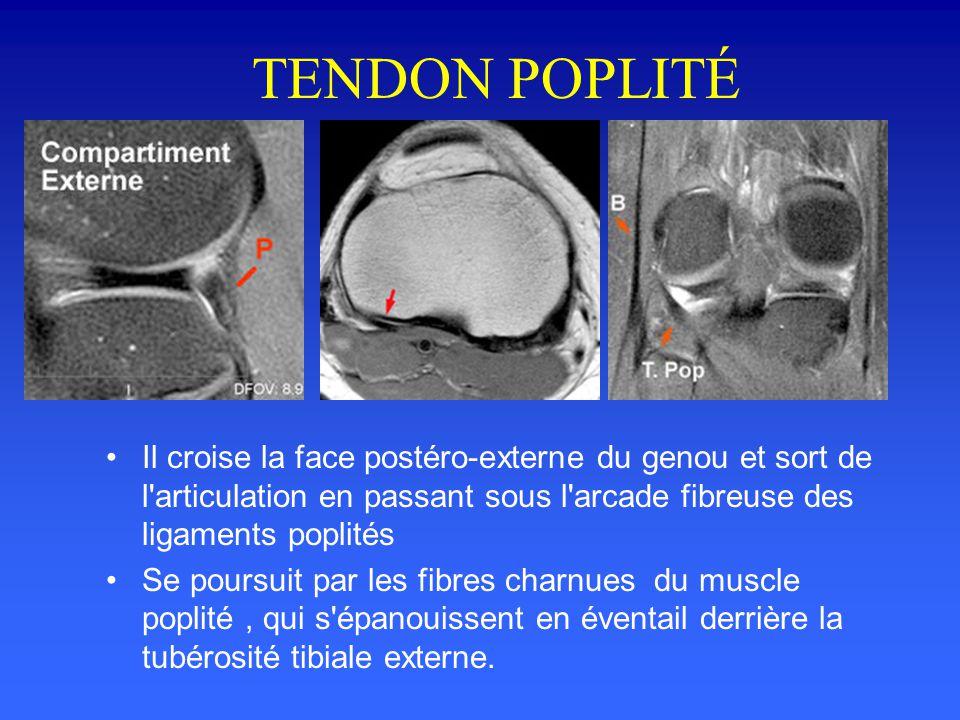 TENDON POPLITÉ Il croise la face postéro-externe du genou et sort de l articulation en passant sous l arcade fibreuse des ligaments poplités.