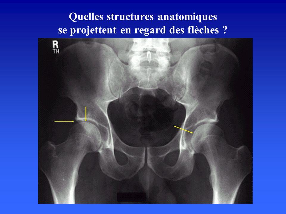 Quelles structures anatomiques se projettent en regard des flèches