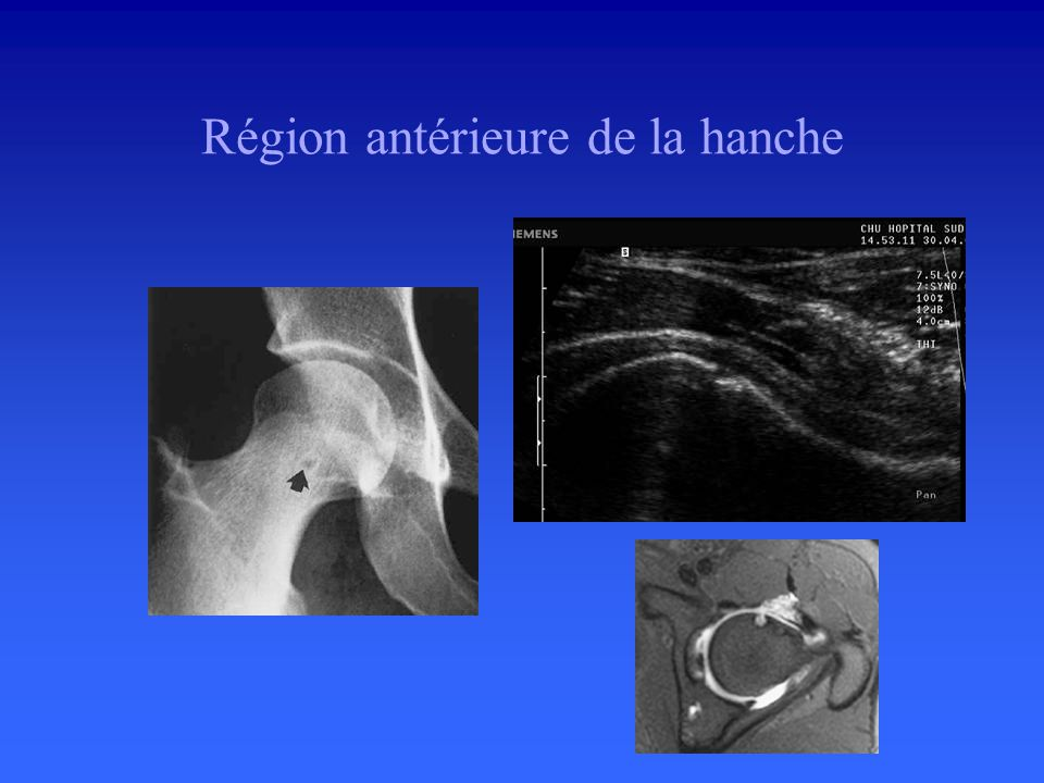 Région antérieure de la hanche