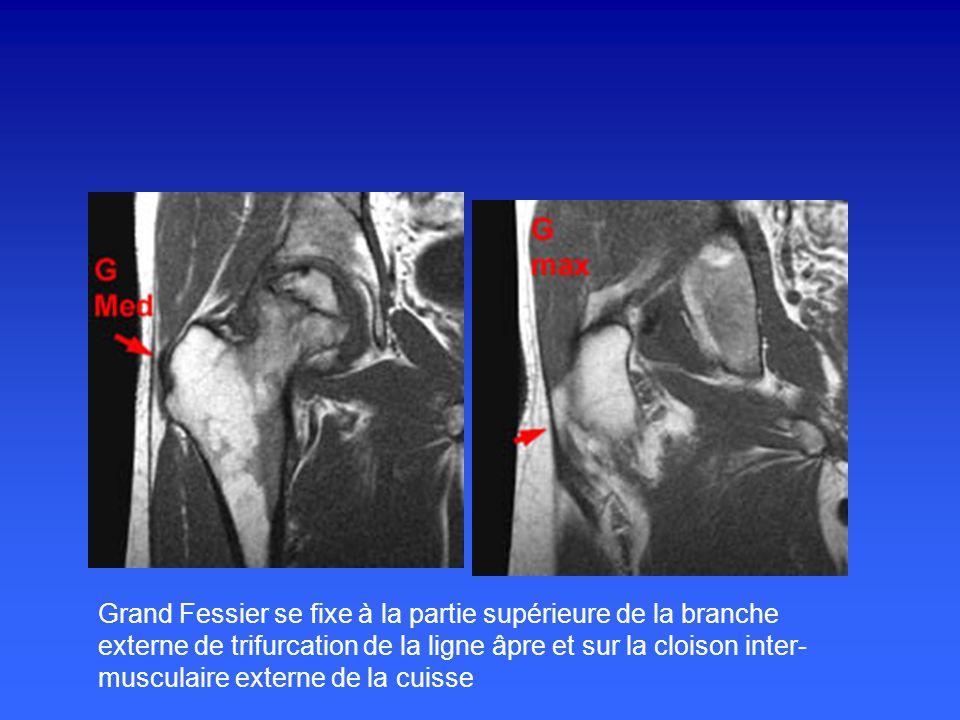 Grand Fessier se fixe à la partie supérieure de la branche externe de trifurcation de la ligne âpre et sur la cloison inter-musculaire externe de la cuisse