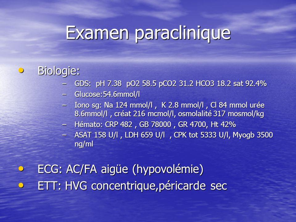Examen paraclinique Biologie: ECG: AC/FA aigüe (hypovolémie)