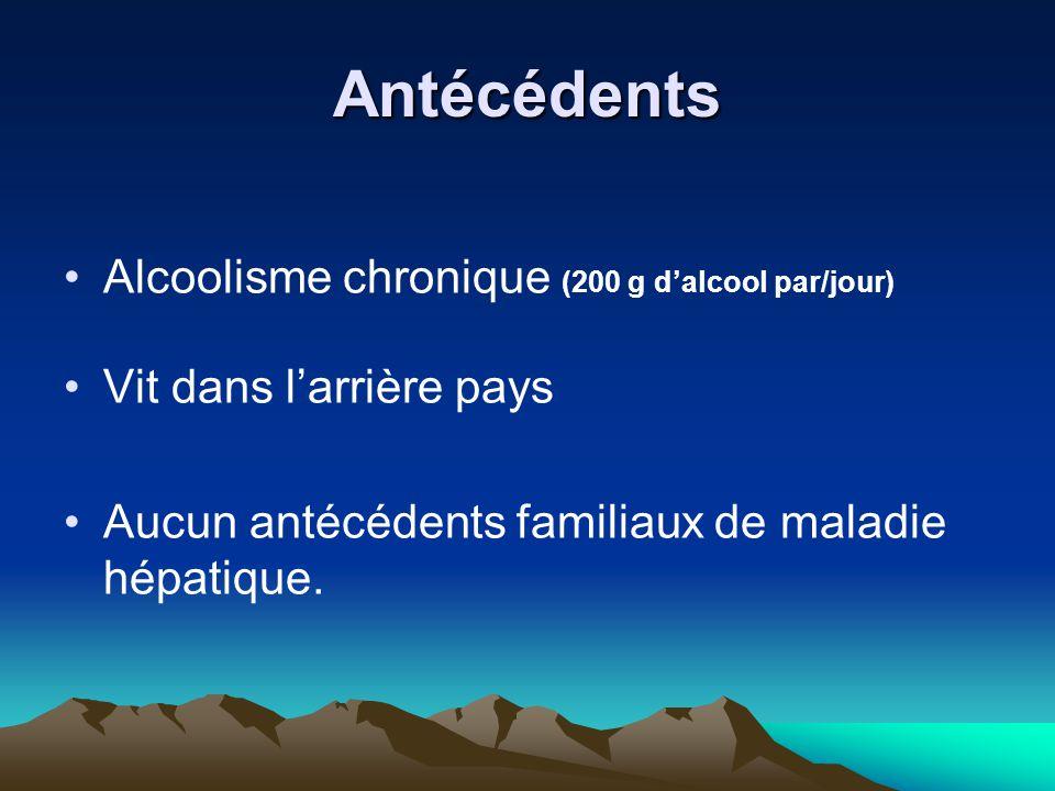 Antécédents Alcoolisme chronique (200 g d'alcool par/jour)