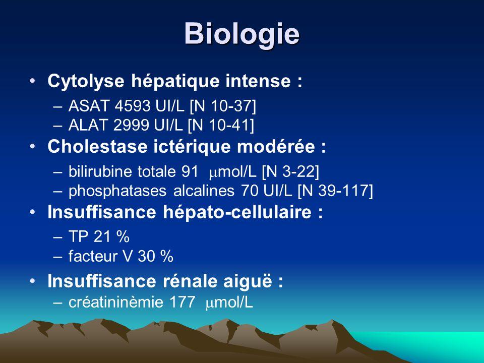 Biologie Cytolyse hépatique intense : Cholestase ictérique modérée :
