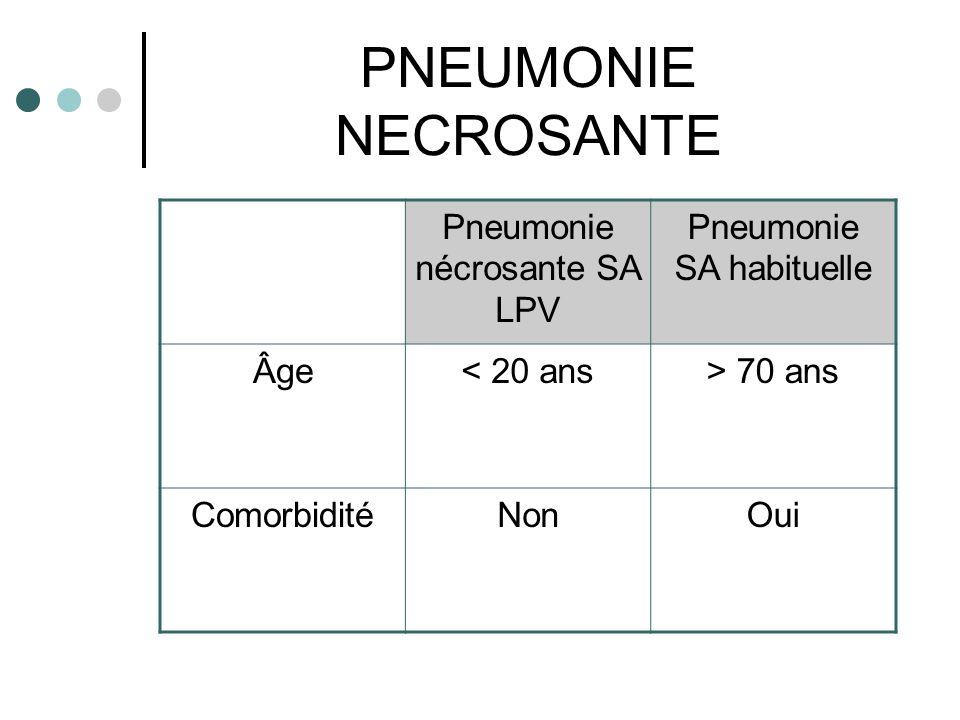 PNEUMONIE NECROSANTE Pneumonie nécrosante SA LPV