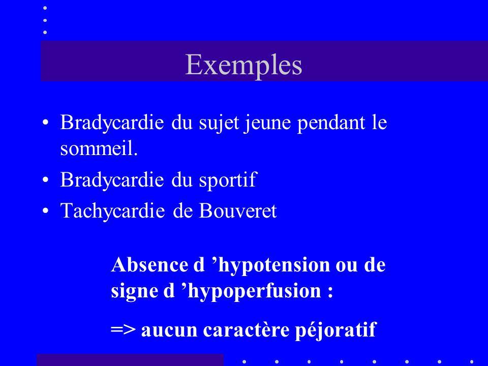 Exemples Bradycardie du sujet jeune pendant le sommeil.