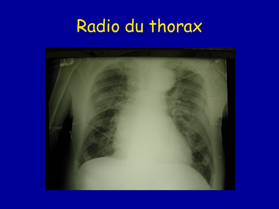 Radio du thorax