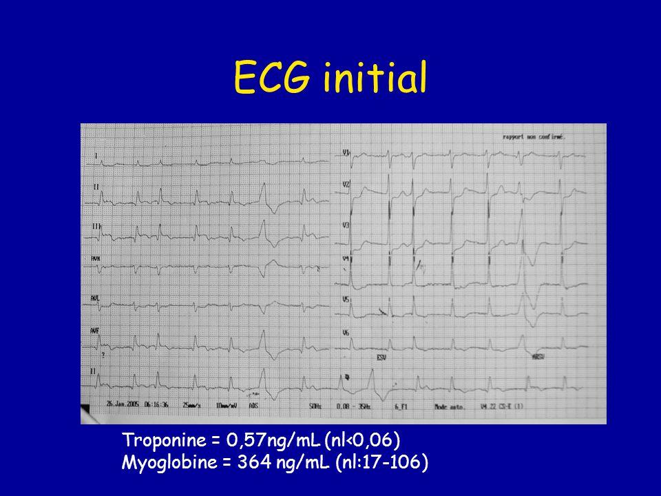 Troponine = 0,57ng/mL (nl‹0,06) Myoglobine = 364 ng/mL (nl:17-106)