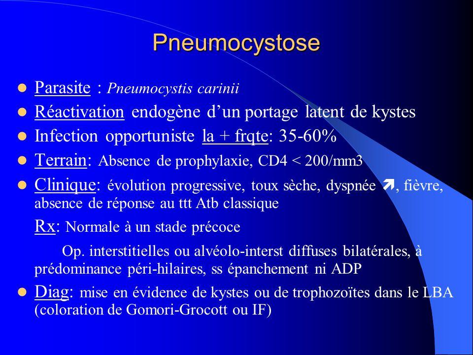 Pneumocystose Parasite : Pneumocystis carinii