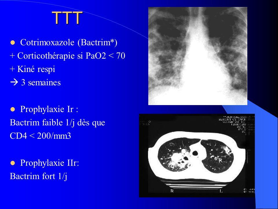 TTT Cotrimoxazole (Bactrim*) + Corticothérapie si PaO2 < 70
