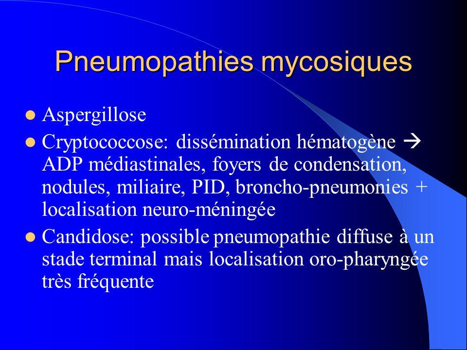 Pneumopathies mycosiques