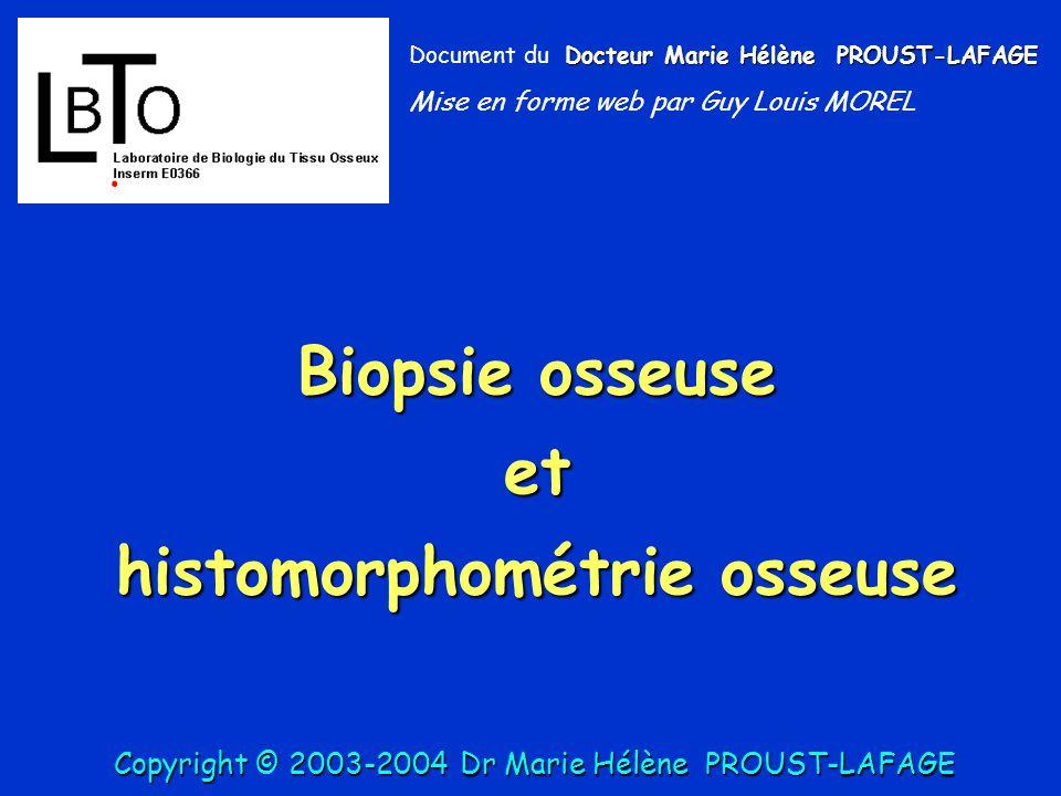 histomorphométrie osseuse