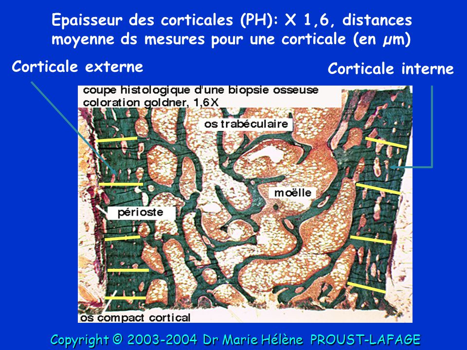 Epaisseur des corticales (PH): X 1,6, distances