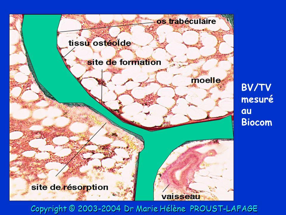 BV/TV mesuré au Biocom Copyright © 2003-2004 Dr Marie Hélène PROUST-LAFAGE