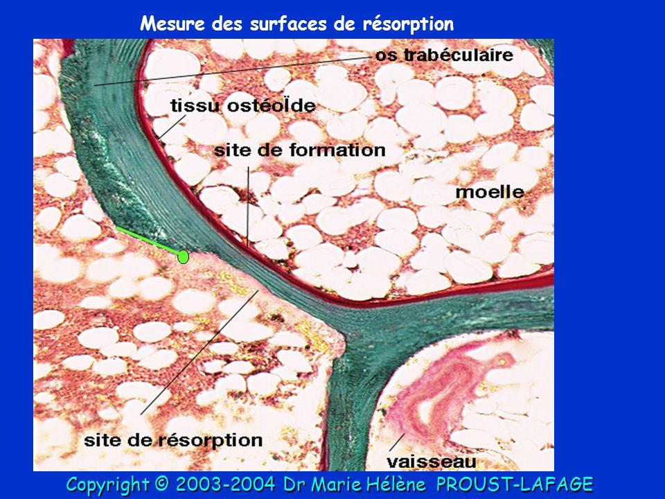 Mesure des surfaces de résorption