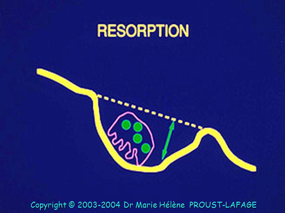 Copyright © 2003-2004 Dr Marie Hélène PROUST-LAFAGE