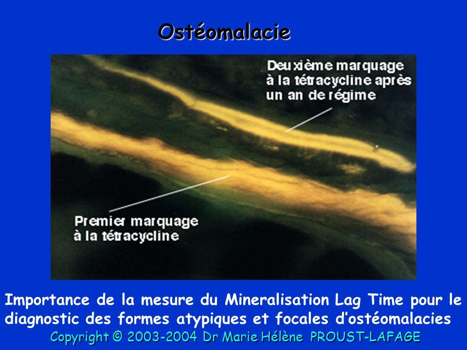 Ostéomalacie Importance de la mesure du Mineralisation Lag Time pour le diagnostic des formes atypiques et focales d'ostéomalacies.